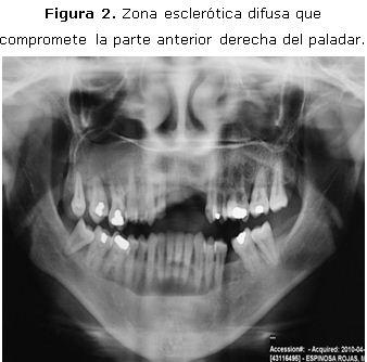 benignus adenoma