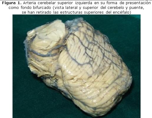 Norma anatómica de la arteria cerebelar superior