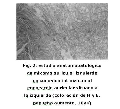 Mixoma de aurícula izquierda