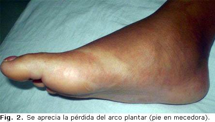 pied de charcot