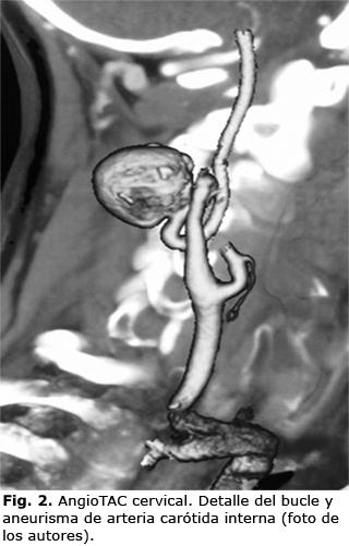 Bucle sintomático y aneurisma de arteria carótida interna extracraneal