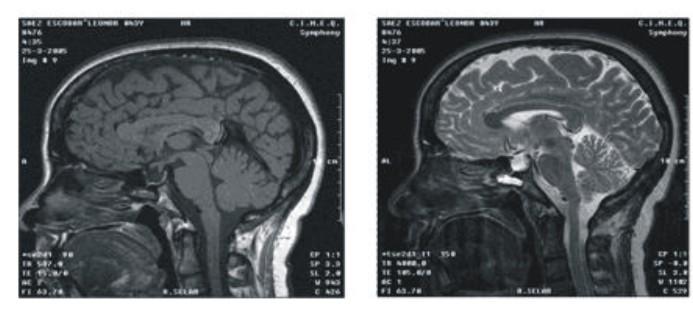 Consideraciones sobre el diagnóstico por imágenes de las masas selares