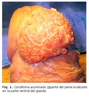 pene infectado