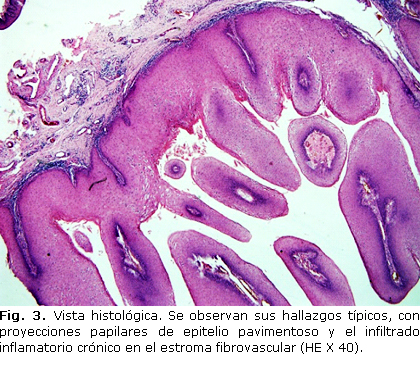 virus papiloma condiloma acuminado)