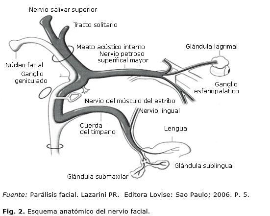 Parálisis facial y preeclampsia