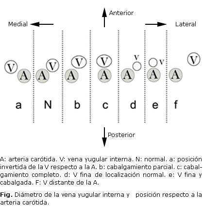 Variabilidad anatómica de la vena yugular interna por ecografía en ...