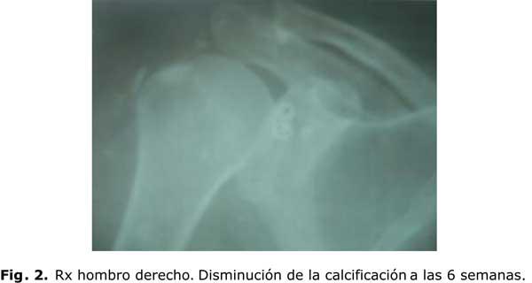 Tratamiento acupuntural de la bursitis subdeltoidea calcificada en ...
