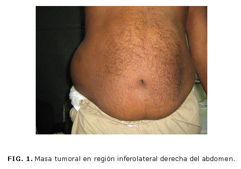 Stomach And Abdomen Bloating After Eating Or Drinking Anything Ask Com