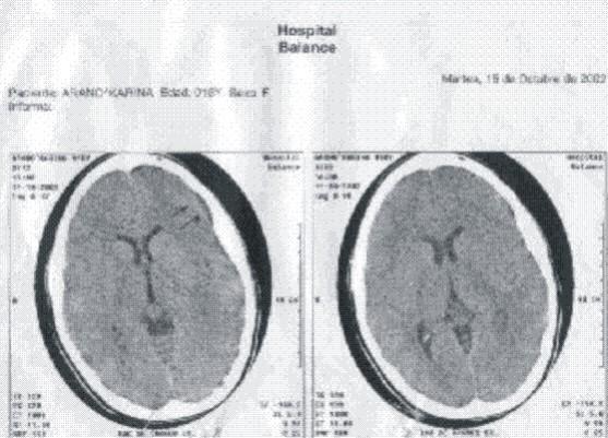 Encefalitis por herpes virus tipo 6