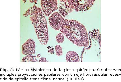 Papilloma uroteliale benigno
