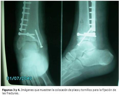 Tratamiento quirúrgico de una fractura trimaleolar de tobillo ...