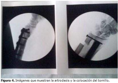 Retiro de material de osteosintesis