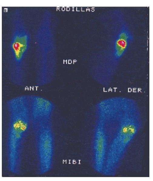 Captación de 99mTc-MIBI en los tumores óseos: Estudio comparativo ...