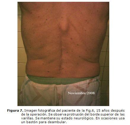 Fracturas inestables de la columna vertebral: presentación de una ...