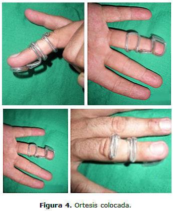 Ortesis para el tratamiento del dedo en martillo traumático ...