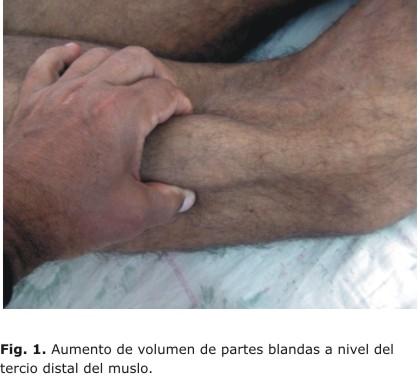 Tofo intramuscular del vasto externo en el muslo izquierdo