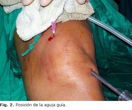 Plicatura medial asistida por artroscopia a propósito de un caso