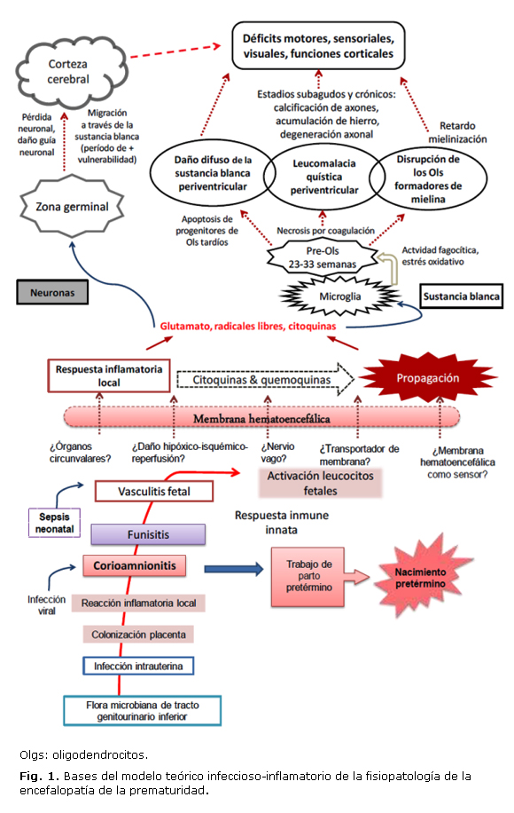 La encefalopatía de la prematuridad, una entidad nosológica en expansión
