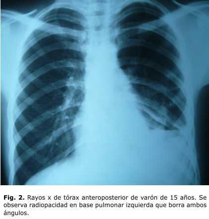 Neumonía como forma de presentación de la tuberculosis