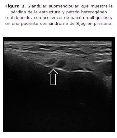 Evaluación ecográfica de la glándula salival: utilidad y diagnóstico ...