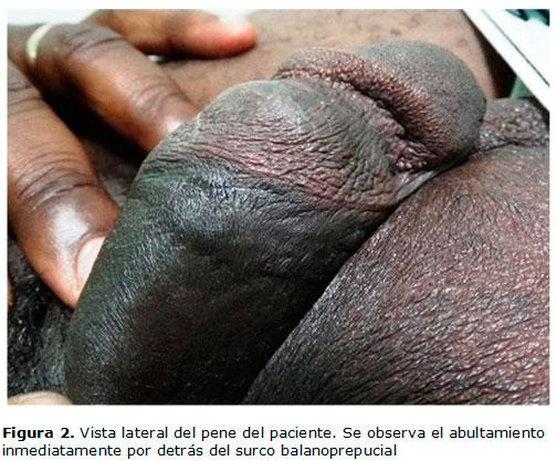El aumento de las dimensiones del pene sexual
