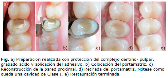 Técnica modificada de restauración de cavidades Clase II utilizando ...