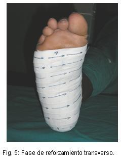 Plantar Fasciitis Walking Shoes Uk