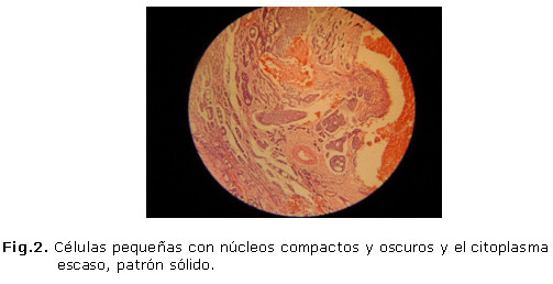 Carcinoma adenoquístico de glándula sublingual. A propósito de un caso