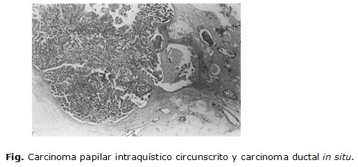 Carcinoma papilar de la mama - Breastcancerorg