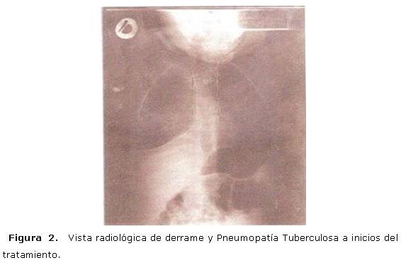 Tuberculosis y sida pedi trico a prop sito de un caso en mozambique - Liquido preseminal vih casos ...