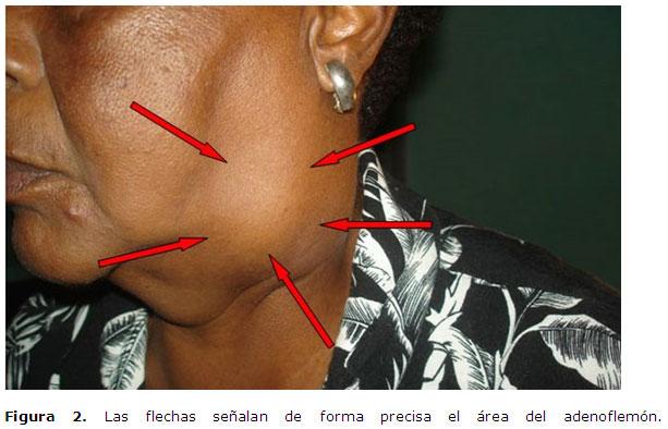 ganglio cervical absceso: